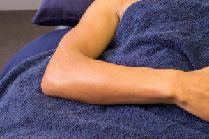 Adelaide Acupuncture